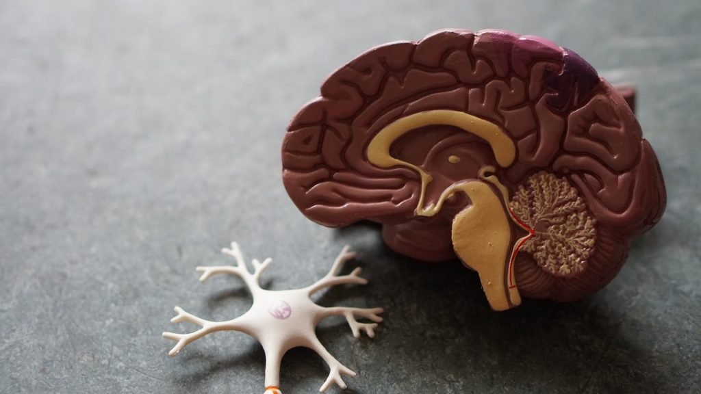 Plastic brain model