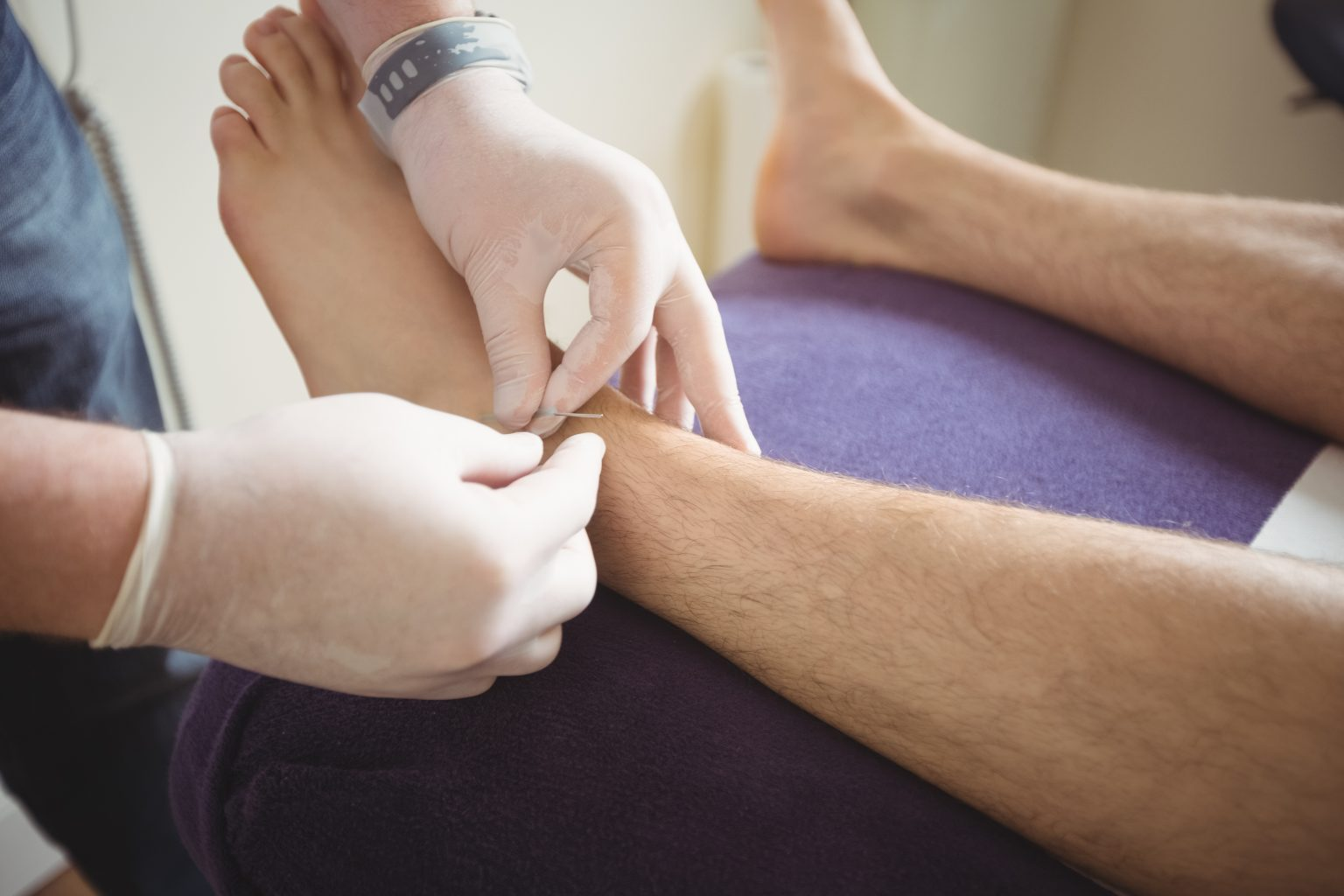 acupuncture needle apllication on ankle